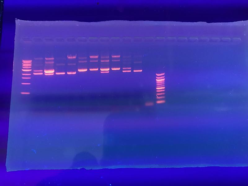 gel de electroforesis bajo luz ultravioleta